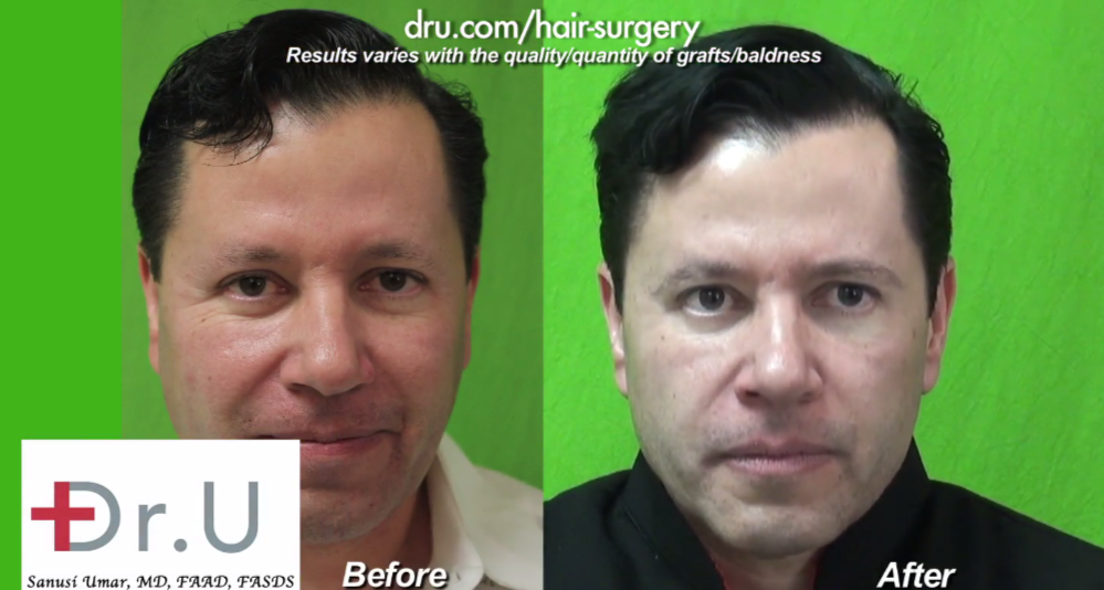Los Angeles facial hair restoration patient before and after his procedure using leg hair grafts for softer, but fuller brow definition