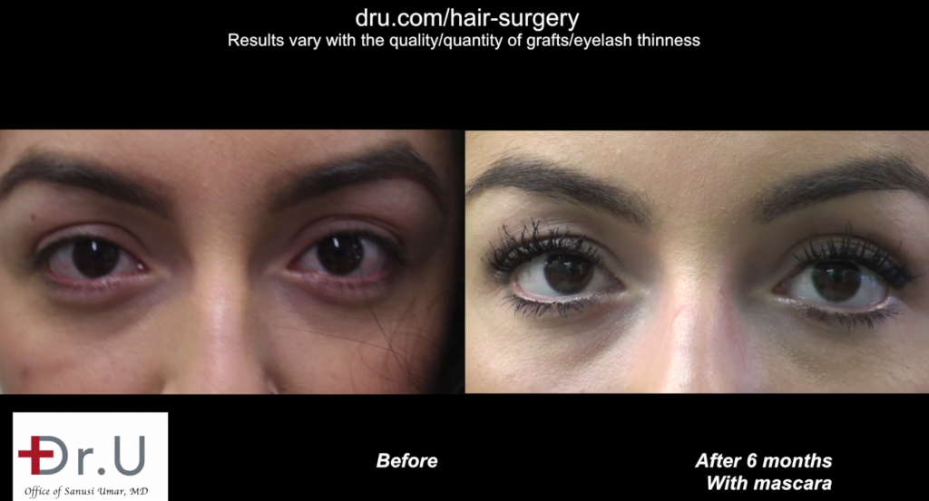 Los Angeles eyelash transplantation patient before and after her procedure with leg hair