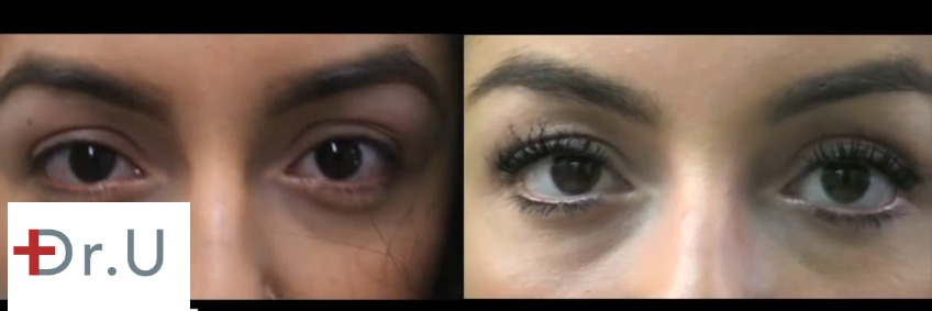 Patient before and after her eyelash transplant, body hair restoration surgery using leg hair follicle grafts