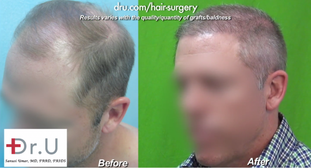 Patient Before and After His Hair Transplant Using Beard Hair