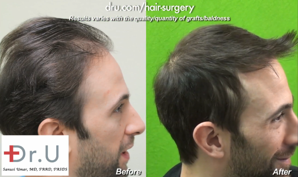 Celebrity Television Actor Before and After His Follicular Unit Extraction Procedure With Dr. Umar