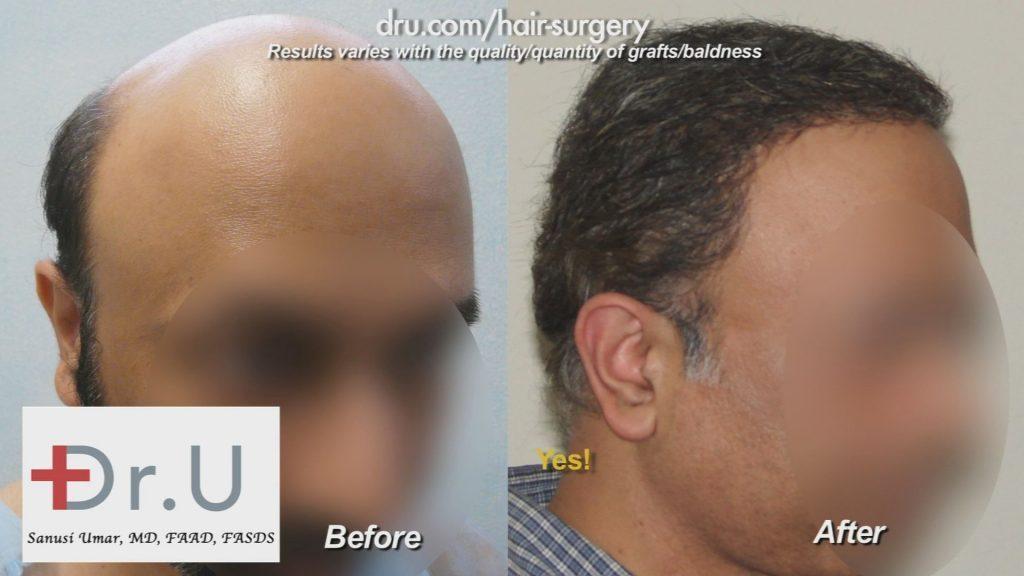 Body Hair Transplantation Can Reverse Severe Baldness