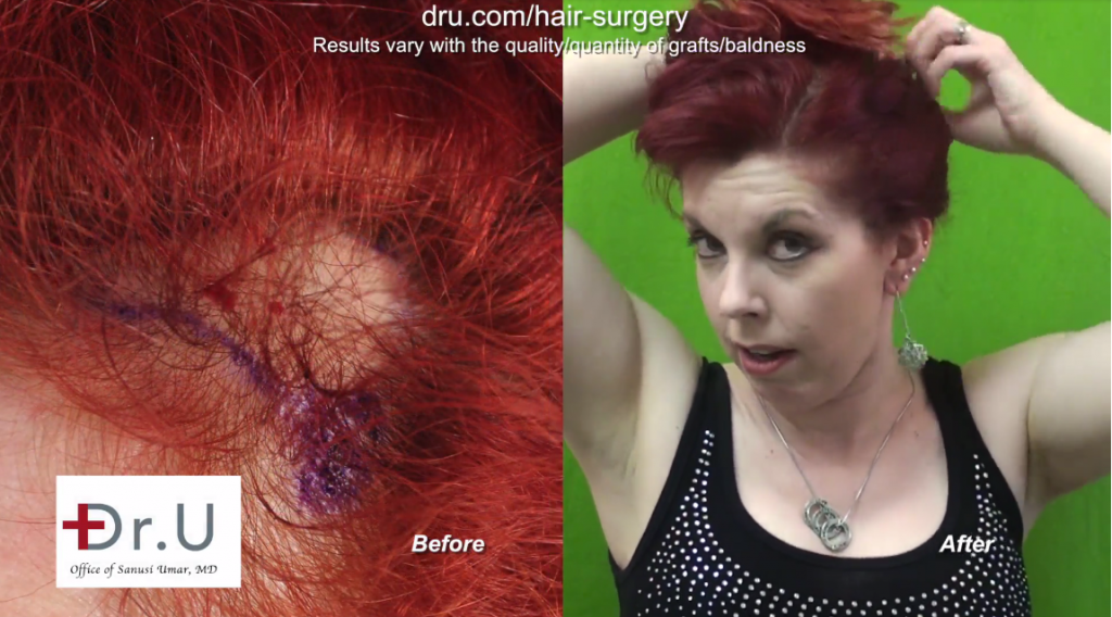 Traction Alopecia reversed on Los Angeles patient through FUE hair transplant for women performed by Dr. Umar