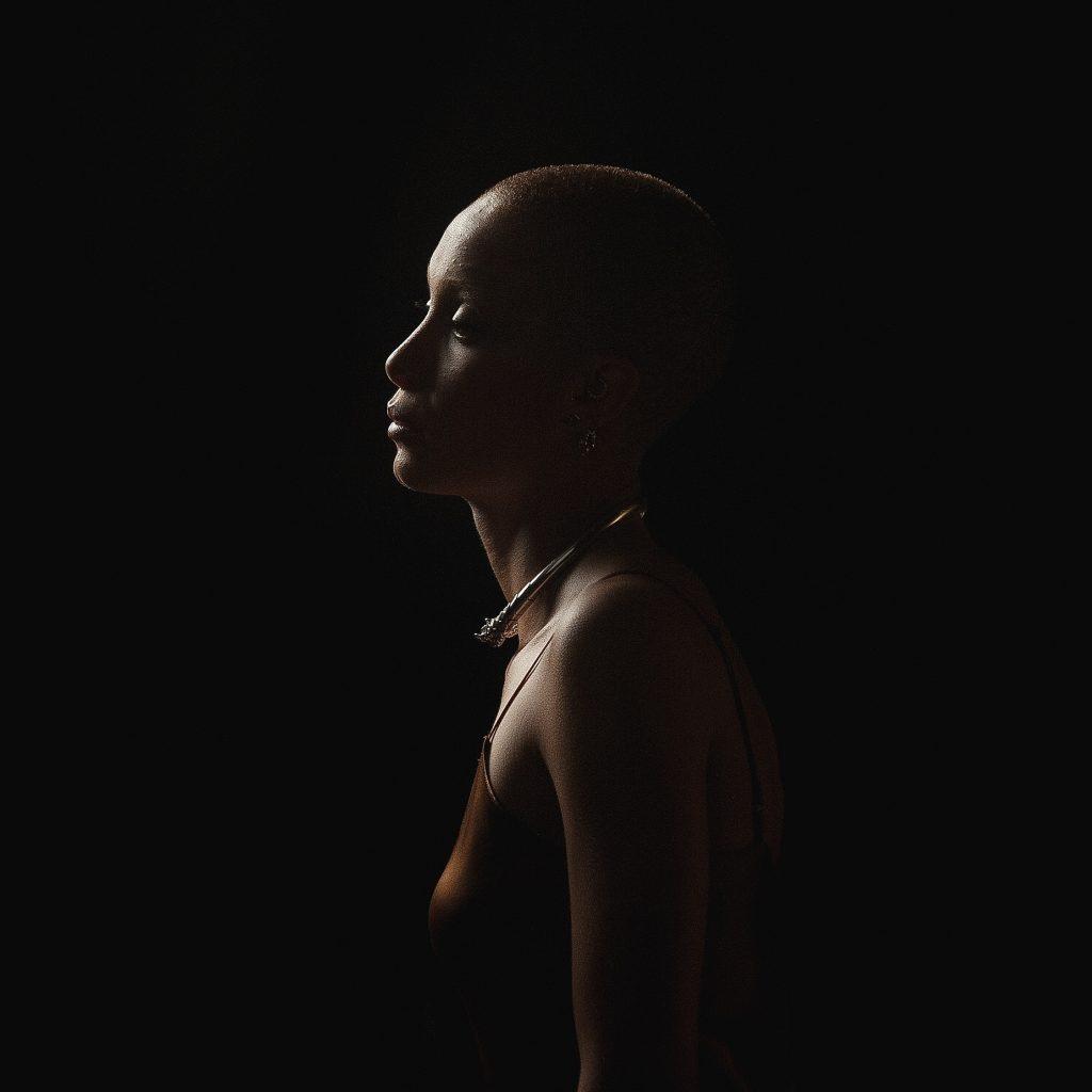 Female pattern baldness no longer has to be a life sentence.