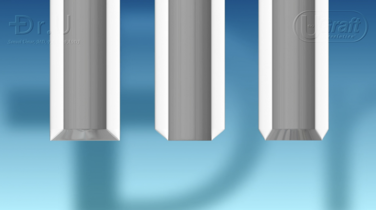 Different types of sharp FUE punch tips. Depicted above: an inner bevel, an outer bevel, and a bi-bevel.